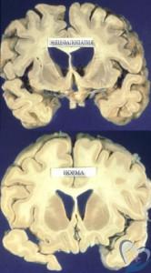 Лечение энцефалопатии