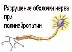 Лечение полинейропатии